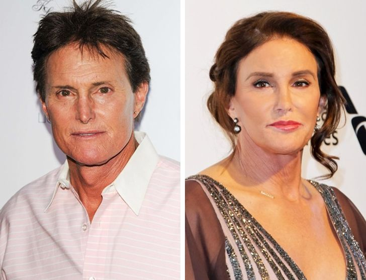 How plastic surgery has changed these celebrities dramatically 1