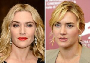 13 Celebrities Who Have Undergone a Complete Makeover